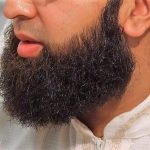 FRENCH HOSPITAL rejects doctor trainee because of his Muslim beard